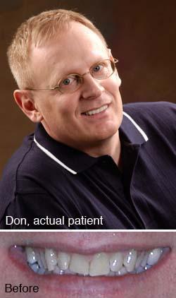 Don, actual patient