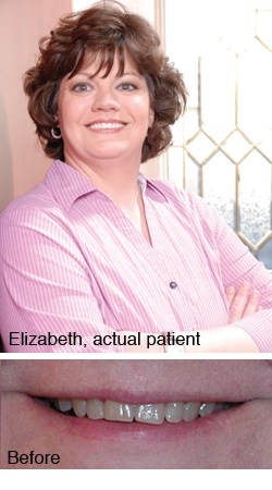 Elizabeth, actual patient