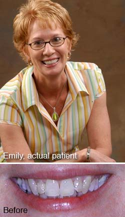 Emily, actual patient