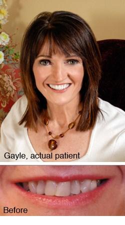 Gayle, actual patient