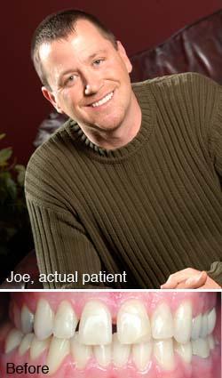 Joe, actual patient
