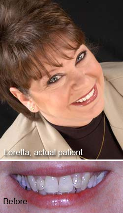 Loretta, actual patient - Dr. Larry Winans in Lewisburg