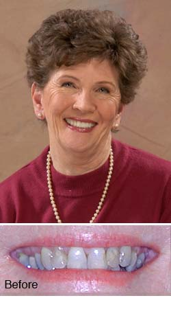 Nancy, actual patient - Dr. Larry Winans in Lewisburg