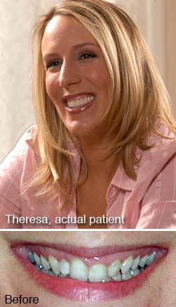 Theresa, actual patient
