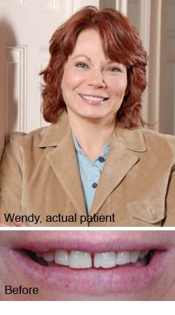 Wendy, actual patient