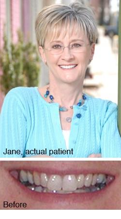 Jane, actual patient