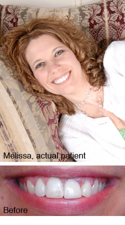 Melissa, actual patient - Dr. Larry Winans in Lewisburg