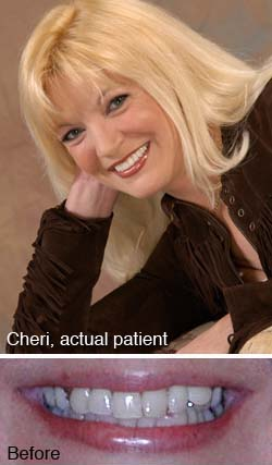 Cheri, actual patient