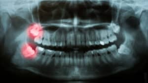 wisdom teeth on dental x-ray